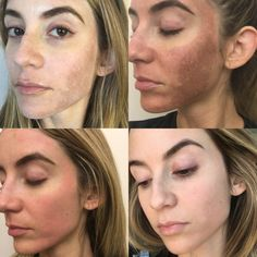 Meet Ashley Spivey, a super cool New Yorker who has been on a serious skin journey. Like many of us, Ashley struggles with Melasma, but has found a light at the… Face Skin, Face And Body, Dark Spots On Face, Good Skin Tips, Beauty Skin, Tca Peel, Face Masks, Home Remedies, Beauty