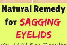 Remedies For Sagging Skin Natural Remedy For Sagging Eyelids – You Will See Results In 2 Minutes Dry Skin Causes, Essential Oils For Face, Younger Skin, Love Natural, Sagging Skin, Makes You Beautiful, Skin Food, Skin Firming, Health And Beauty Tips