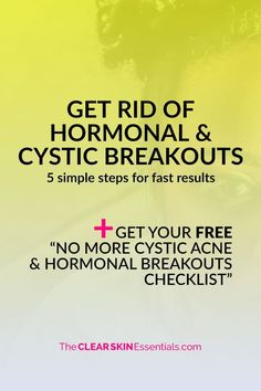 """Got painful cystic acne or hormonal breakouts that won't go away? Here's 5 things you can do right now to start clearing up your skin and preventing new pimples from forming. Plus, make sure to download the FREE """"No More Cystic & Hormonal Breakouts Checklist"""" for even more things to try!   www.TheClearSkinEssentials.com"""