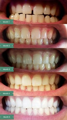 my smile direct club results after 6 months of wearing