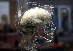 """The """"brain in a jar"""" scenario, in which a mad scientist disembodies a person's brain and connects it to a simulated reality, is both a common science fiction trope and the subject of countless thought experiments. But now, a limited version of that scenario may have just become a reality, as researchers from Ohio State University claim to have grown a nearly complete miniature human brain in a lab.  The organoid is about the size of a pencil eraser, and was derived from human cells…"""