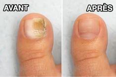 Le plus chaud Pic Course a Pied photo Réflexions Nail Growth Polish, Nail Polish, Gel Nail, Toe Fungus, Toenail Fungus Treatment, Nail Repair, Cream Nails, Feet Nails, Skin Care Cream