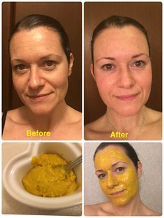 I made a tumeric and coconut oil mask, and the results were insane!! So easy…
