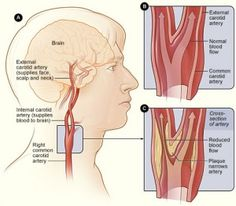 Figure A shows the location of the right carotid artery in the head and neck. Figure B shows the inside of a normal carotid artery that has normal blood flow. Figure C show the inside of a carotid artery that has plaque buildup and reduced blood flow. Blood Pressure Chart, Blood Pressure Remedies, High Blood Pressure, Vertebral Artery, Carotid Artery, Vascular Ultrasound, Medical Intuitive, Nursing Care Plan, Health