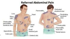 referred pain from anal glands
