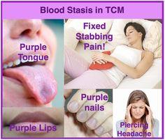 Blood Stasis in TCM