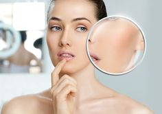 The basics of effective skin rejuvenation begin with the facts on anti-aging skin care treatments. Skin Treatments, Safe Cosmetics, Skin Specialist, Acne Prone Skin, Acne Rosacea, Acne Skin, Skin Problems, Skin Tips, Skin Care Products