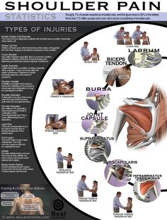 Anatomy of Shoulder Pain. Real Body Work. Infographics and Posters.