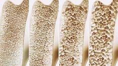 Title: Sale : Udemy: Natural Osteoporosis and Menopause Descrition: Udemy Learn Osteoporosis Prevention and Treatment Options. Udemy : Natural Osteoporosis and Menopause Vist the site for exciting … Ayurvedic Diet, Ayurveda, Bone Health, Gut Health, Health Foods, Menopause Diet, Vitamin D Supplement, Bone Strength, Alternative Health