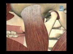 Deglucion Atipica y Deglucion Correcta - YouTube