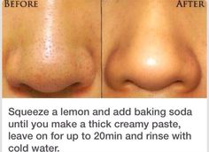 Creative And Cheap WayTo Get Rid Of Blackheads? 😃
