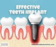 Missing a No problem! Get a done today. An effective procedure that is easy on the pocket, know more about the process today. Teeth Implants, Dental Implants, Clinic, Tooth, Pocket, Easy, Teeth, Dental, Bag