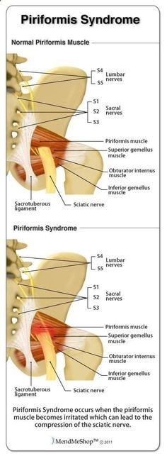 Information about sciatic pain caused by the sciatic nerve being pinched by the piriformis muscle. Learn how Deep Tissue Rehab therapy can reduce swelling, pain and inflammation in the piriformis muscle to alleviate the pinching of the sciatic nerve. Sciatic Pain, Sciatic Nerve, Nerve Pain, Sciatica Relief, Hip Pain, Back Pain, Piriformis Syndrome Treatment, Piriformis Syndrome Symptoms, Health And Fitness