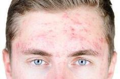 Les huiles essentielles contre l'acné, un traitement naturel. Nos conseils en aromathérapie et phytothérapie pour venir à bout des petits et gros boutons. Notre peau change entre l'adolescence et l'âge adulte. L'acné également. Malheureusement toutes les tranches d'âges peuvent être touchées. Notre dossier va vous aider à mieux comprendre qui est touché & pourquoi et vous indiquer comment traiter efficacement l'acné de manière 100% naturelle et efficace.
