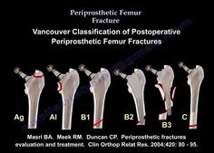 Ebraheim's educational animated video describes the periporsthetic fracture of the femur in a simple and easy way. Vancouver classification for postopera. Hip Replacement Recovery, Need To Know, Surgery, Everything, Medical, Pta, Nursing, Medicine, Med School