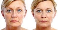 Facial toning exercises to hone facial muscles, tighten saggy face skin, and get rid of wrinkles. Swift face yoga regimens to build up flabby face tissue and tighten the neck Mascara Tips, How To Apply Mascara, Applying Mascara, Contour, Natural Face Lift, Facial Yoga, Facial Massage, Botox Injections, Dermal Fillers