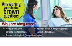 You can learn more about dental crowns on our website. Visit http://www.gentledentalputney.co.uk/crowns-and-bridges/ #DentalCrownsPutney #BestDentistLondon