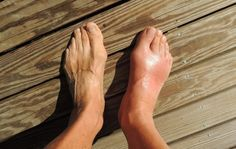 Home Remedies For Gout, Gout Remedies, Natural Remedies, Cures For Gout, Signs Of Gout, Essential Oils For Gout, Gout Relief, Pain Relief, Fibromyalgia