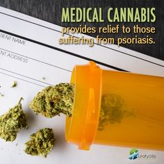 Medical Cannabis provides relief to those suffering from those psoriasis.  #frosty #fire #bud #thc #Kush #Marijuana #dank #Cancerkiller #420 #ganja #vape #Cannabis #ogkush #cookies #vegebloom #hydroponicresearcher #plantscienceconcepts #leafygillscannabis #leafygills #organic #trimming #Trimmingcannabis #topshelfcannabis #nofertilizers #medicalcannabis #Cannabisplant #weed #kush #sativa #indica #smoke #Joint #highfire #vape #hash #dope #chill #tree #pot #high #dab