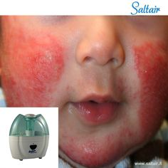 Use of Salt Vapour therapy is very useful in treating unhealthy conditions like skin irritation, respiratory problems and boosts the immune power. Its negative ions instrumental in regularising the oxygen flow and purification of blood. #Cysticfibrosis   #saltair.fi #salinizer #SaltVaporTherapy #asthma
