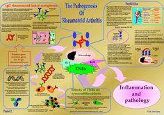 RHEUMATOID ARTHRITIS AND AUTOIMMUNITY ~