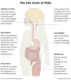 polio pictures   The Major Symptoms of Polio are included below: