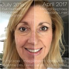 This Before and After is amazing!  Yup, that's me!   I started using Rodan+Fields in July 2016 and love the products so much I joined the team less than 4 weeks later!   I've never looked back or regretted a thing about it!  Knew a good thing when I saw it!  www.kdicks818.myrandf.com