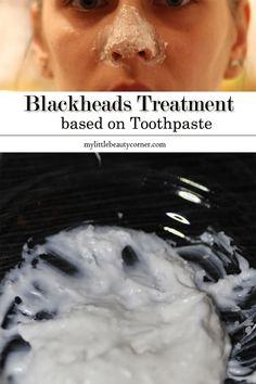 Blackheads Treatment