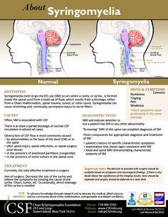 Syringomyelia One Page Information Sheet
