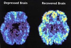 "It amazes me how the chemicals in your brain can affect your life so much! This is a brain on depression compared to a ""normal"" brain...what a difference!!"