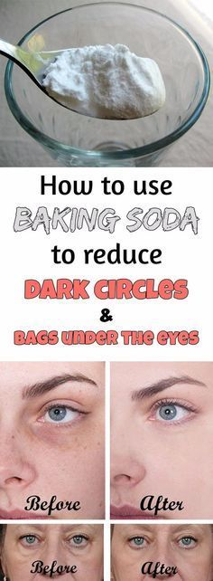 Preparation method:  1. Add a teaspoon of baking in a glass of hot water or tea and mix well.  2. Soak two cotton pads in this solution and place them under the eyes.  3. Leave on for 10-15 minutes, then rinse your face and apply a moisturizer.  Do this daily and you'll see amazing results in just 2 weeks! Follow rickysturn/beauty-health
