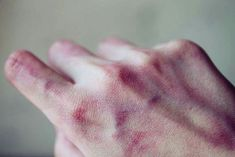 He stared at his bruised hands, no remorse for what he had done. But when he looked at her face, the IV pumping fluids into her system, and when he looked at the bruises on her skin-something inside of him snapped. His face felt wet, his eyes full of tears. He had never regretted anything before, but now? Now he regretted it all.