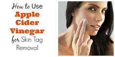 How to Use Apple Cider vinegar for Skin Tag Removal