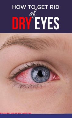 Whenever your tear glands don't produce enough tears to lubricate the eyes then you're experiencing dry eyes (or dry eye syndrome). It can be caused by both medical and environmental factors. Home Remedies for Dry Eyes: Dry Eye Remedies, Natural Beauty Remedies, Health Remedies, Red Eyes Remedy, Allergy Remedies, Natural Cures, Mascara, Eyeliner, Dry Eyes Causes