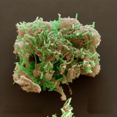 Metallireducens bacteria (green) Electron microscopy being used to digest uranium waste. This bacteria is able to survive in radioactive environments and turn the u. Science Geek, Science Art, Science And Nature, Science And Technology, Microscopic Photography, Micro Photography, Microscopic Images, Macro And Micro, Things Under A Microscope