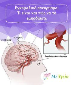 Εγκεφαλικό ανεύρυσμα: Τι είναι και πώς να το εμποδίσετε   Ανευρύσματα του εγκεφάλου. Μπορεί να έχετε ακούσει ανθρώπους να μιλούν για αυτά ή εσείς ή κάποιος συγγενής σας μπορεί να το έχει βιώσει στο παρελθόν. Είναι μικρά αιμοφόρα αγγεία που έχουν φλεγμονή με αίμα στον εγκέφαλο και του ασκούν επικίνδυνη πίεση. Στην ουσία, αυτό είναι κάτι που πρέπει να θυμάστε, επειδή ένα ποσοστό από τις αιτίες εμφάνισης του ανευρύσματος έχει να κάνει με τις συνήθειες. #Υγιεινές Συνήθειες Tips, Beauty, Cosmetology, Hacks
