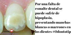 Una deficiencia en el esmalte dental puede ocasionar hipoplasia, generando manchas blancas o marrones #Odontotip