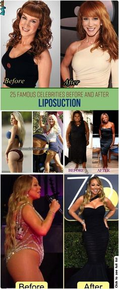#aftercelebrities #you25fbefore #celebrcelebr #liposuction #celebrities #you25famous #fascinate #beautiful #something #picture #you25fb #looking #lipos25 #exactly #famousAnd After Liposuction -  25 Famous Celebrities Before And After Liposuction –   Best Picture For  90s celebrities  For Your Taste You are looking for something, and it is going to tell you exactly what you are looking for, and you didn't find that picture. Here you will find the most beautiful picture that will fascinate…