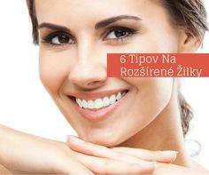 Čo robiť, ak máte rozšírené žilky na tvári? http://www.poradkyna.sk/ako-na-rozsirene-zilky-na-tvari/ via @MartinaLamosova ak sa páčilo dajte PIN