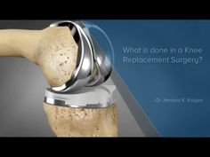 Knee Replacement Surgery PreOp® Patient Education - YouTube