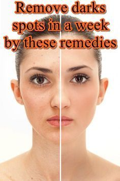 dark spots in face: Are dark spots on your face bogging you down?you have tried several off the shelf remedies for dark spots but haven't been able to get rid of the dark spots.aren't you wondering whether there are any less expensive and effective remedies?well, look no further!they are available right there in your kitchen.but first lets talk about the causes of dark spots.