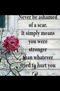 Thank u crohns for the roadmap of scars on my abdomen Quotable Quotes, Motivational Quotes, Funny Quotes, Inspirational Quotes, Qoutes, Positive Quotes, Quotations, Quotes Quotes, Scar Quotes