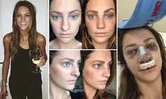 Melbourne hairdresser Rhiannon Langley made headlines for sharing her 'nose job journey' on social media. Now, she has revealed her day-by-day journal of the experience.