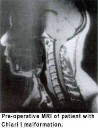 """Chiari malformation is considered a congenital condition, although acquired forms of the condition have been diagnosed. A German pathologist, Professor Hans Chiari, first described abnormalities of the brain at the junction of the skull with the spine in the 1890s. He categorized these in order of severity; types I, II, III, and IV. The term """"Arnold-Chiari"""" was latter applied to the Chiari type II malformation. These malformations, along with syringomyelia and hydromyelia, two closely…"""