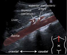 310 Ultrasound Technician Ideas Ultrasound Technician Ultrasound Diagnostic Medical Sonography