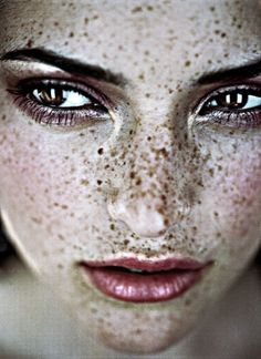 Beautiful freckles