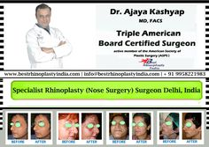 Best Rhinoplasty Surgeon in Delhi, India Contact the best #Rhinoplasty #Specialist Book your appointment at +91-9818369662, 9958221983