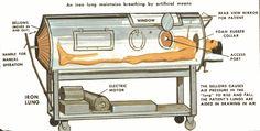 negative-pressure-ventilation.gif (1128×571)