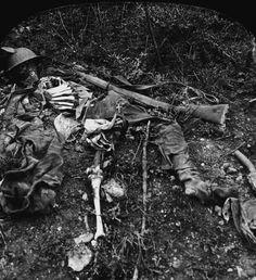 Fotos de la Primera Guerra Mundial: 99 aniversario del verano de su comienzo (IMÁGENES).1915. Restos de un soldado.