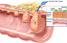 Severity of Ulcerative Colitis http://www.stemcellstcm.com/severity-of-ulcerative-colitis.html